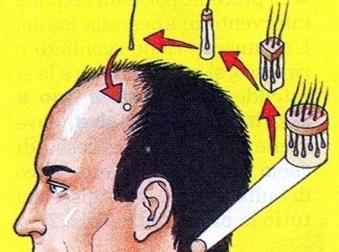 Perdita di capelli alopetion omeopatia